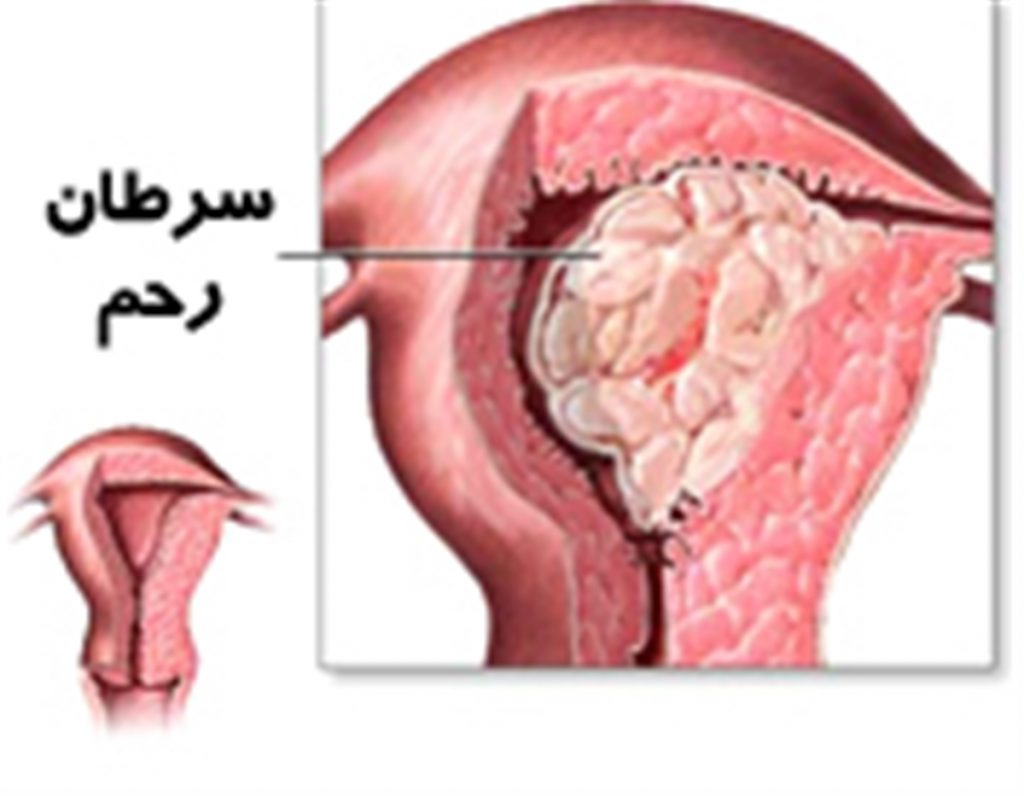 درمان سرطان رحم