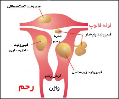 بیماری های زنان - فیبروئید
