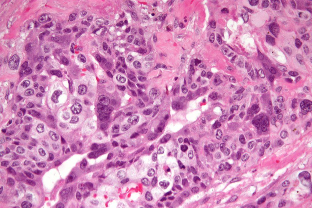 کوریوکارسینوم  یک سرطان نادر می باشد که در هر ۲۰ هزار خانم حامله یک نفر با آن دچار  می شود. این سرطان از بافت  جفت ایجاد میشود و معمولاً  هم از یک تومور سرطانی جفت که به آن اصطلاحاً مول هیداتیفرم گفته میشود ناشی میگردد .