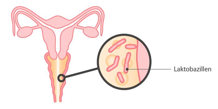 واژینوز باکتریایی  اغلب هیچ علامتی ایجاد نمی کند گرچه گاهی اوقات خانم های مبتلا به این عفونت ،دچار ترشحات سفید واژن ، مایل به خاکستری که بوی ماهی میدهد شوند وهمچنین باعث خارش مهبل و فرج می شود.